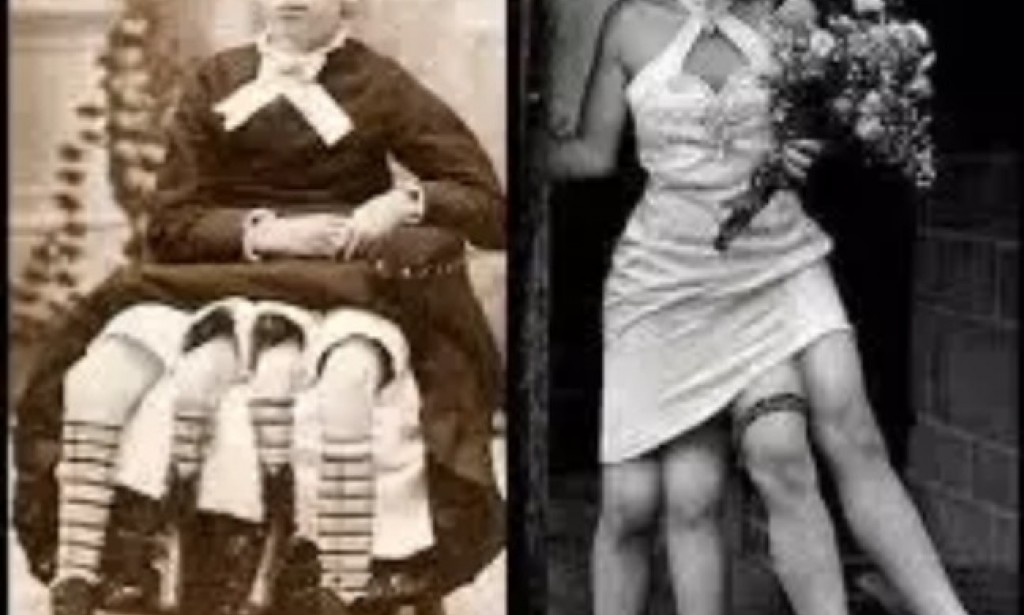 How did the woman who had four legs and two private parts became that way? Here is the answer