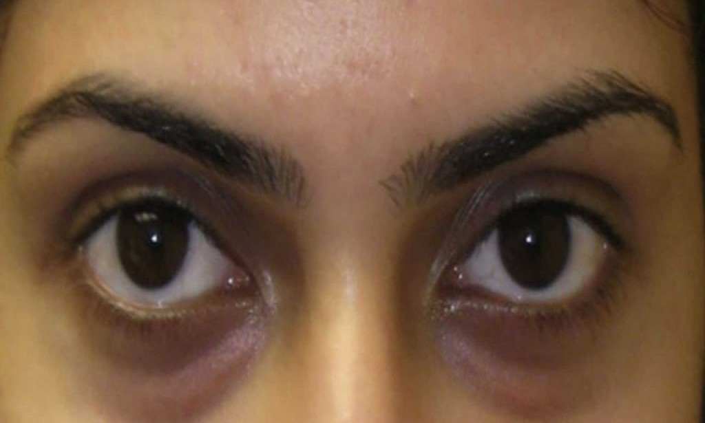 How to reduce dark under eye circles and puffiness and look younger