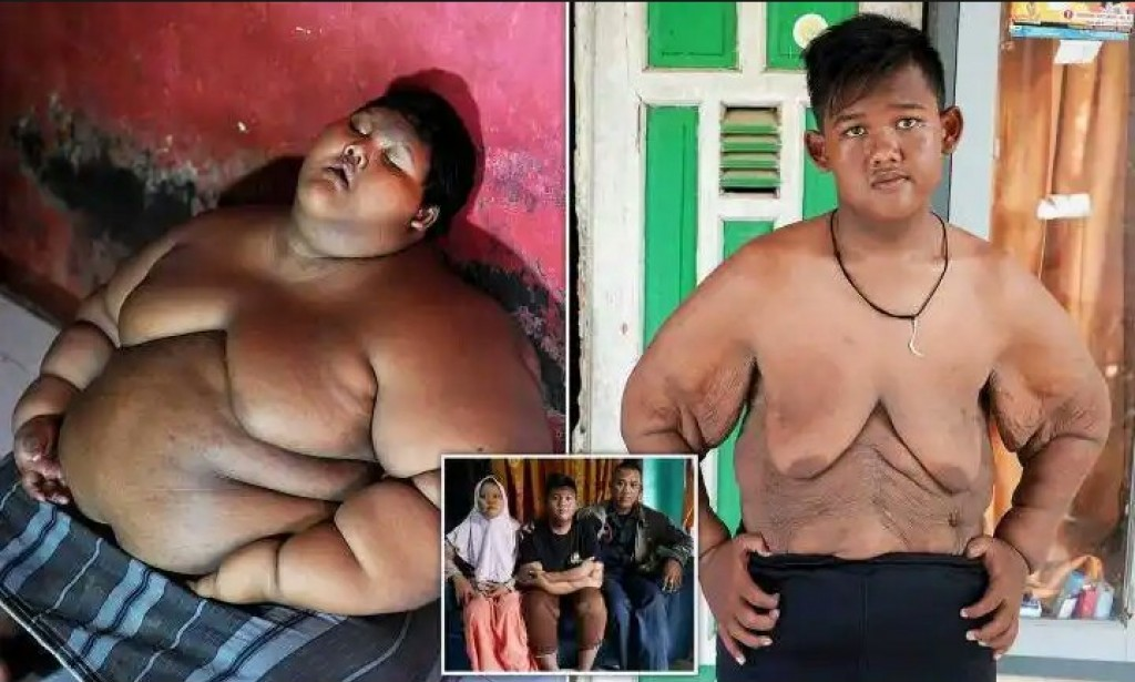See what the World Fattest Kid Reduced Almost Half of his Weight